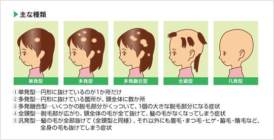 脱毛 症 円形 子供 高校生でも円形脱毛症になる?子供が円形脱毛症となるケースも
